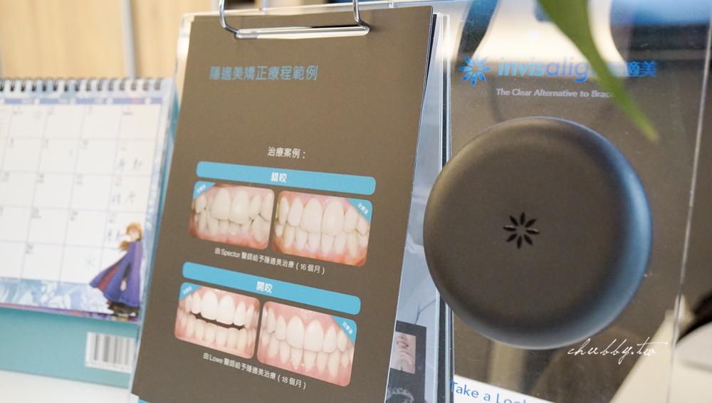 隱適美矯正日記:我為什麼推薦桃園林口康澤牙醫,隱適美費用以及跟傳統牙套比較